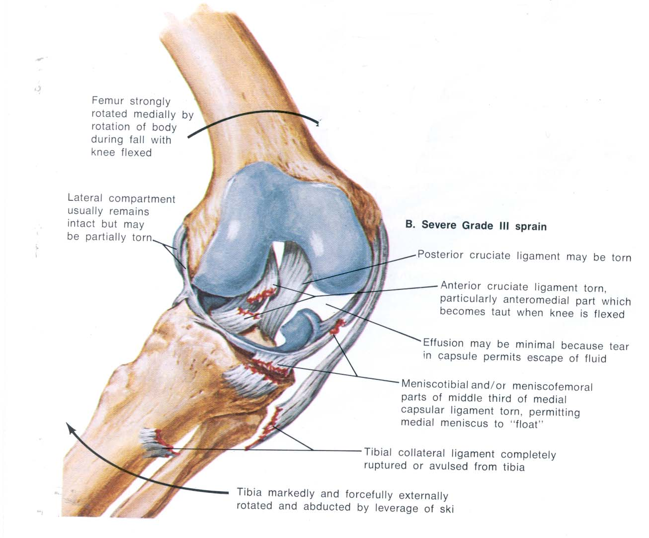 Knee Injuries - Active Plus Milford Physiotherapy 0800 749946